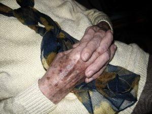 objawy-zakwaszenia-organizmu-plamy-starcze